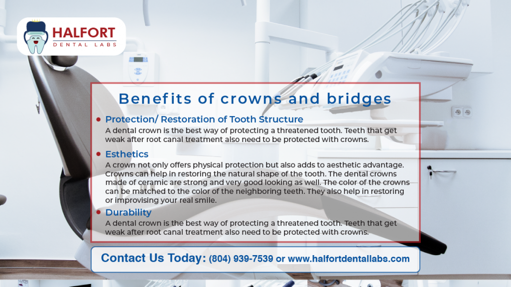 Benefits of Crowns And Bridges
